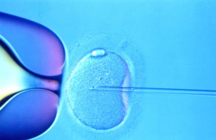fertilizare-in-vitro-6_w1000_h648_q100