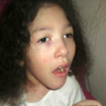 Continuă campania de colectare de fonduri pentru micuţa Laura Mursa